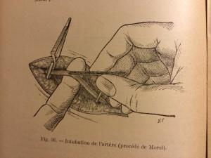 Intubation de l'artère