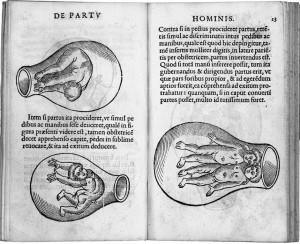Eucharius Rösslin, De partu hominis foetuses, 1532, WikiCommons