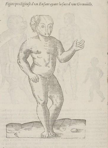 enfant à tête de grenouille, Ambroise Paré, Des Monstres & Prodiges, 1598, p. 1022 (@Gallica)