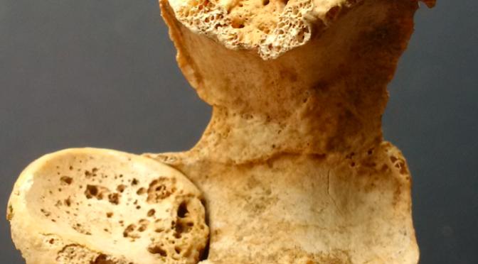 rachitisme | Sociétés humaines du Proche-Orient ancien