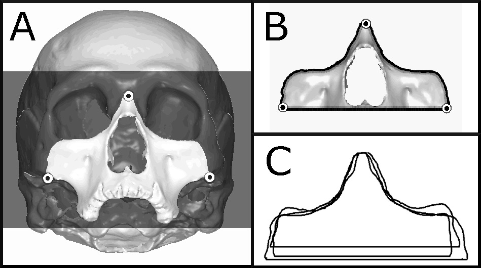 Figure 2. The procedure for obtaining midfacial contours from a cranial 3D model (3). (A) The landmarks nasion and right and left zygomaxillare are identified and used to define a geometric plane, which isolates the anterior midfacial skeleton. (B) A second plane removes the portion below zygomaxillare. (C) The silhouette of the remaining midfacial portion yields the closed contour used for comparisons between European, American Indian, and East Asian population groups.