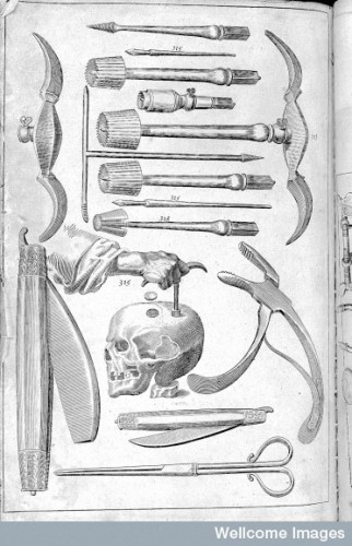 Surgical tools, including Woodall's trefine. From the 1655 edition of The Surgeon's Mate. Source: Wellcome Library.