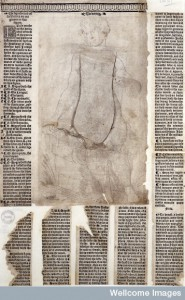 Woodcut, Anatomical Fugitive Sheet, c.1540.  Image courtesy of the Wellcome Library, London. Wellcome Images images@wellcome.ac.uk http://wellcomeimages.org A woman, all layers lowered, (after restoration) Engraving Published: circa 1540 Copyrighted work available under Creative Commons Attribution only licence CC BY 4.0 http://creativecommons.org/licenses/by/4.0/